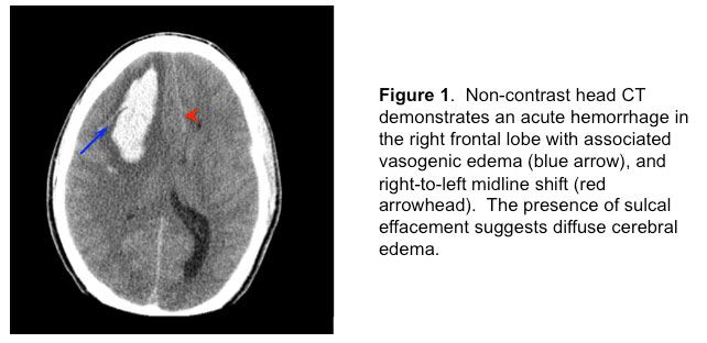 American Thoracic Society - Intracerebral Hemorrhage in a