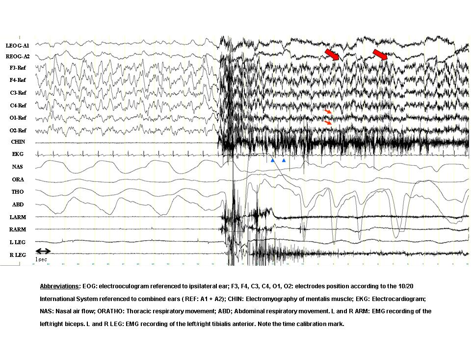 EEG Arousal Norms by Age - PubMed Central (PMC)
