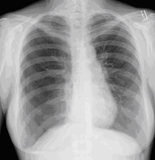 American Thoracic Society - A Case of Recurrent Pneumothoraces