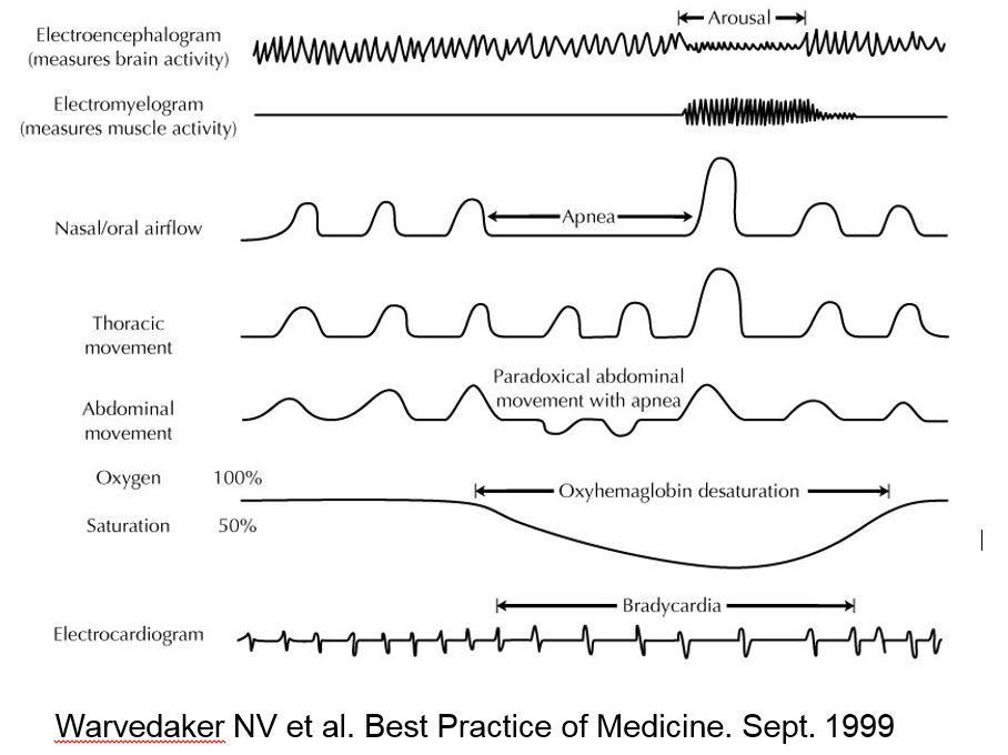 STOP-BANG Score for Obstructive Sleep Apnea - MDCalc